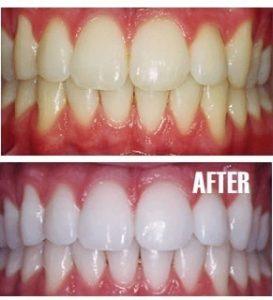 по-бели зъби