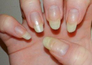 жълтите нокти