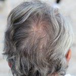сива кос